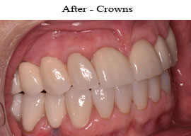 Dental Crowns | W. Kelly Harris DDS | Asheboro, NC