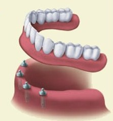 Dentures | W. Kelly Harris DDS | Asheboro, NC