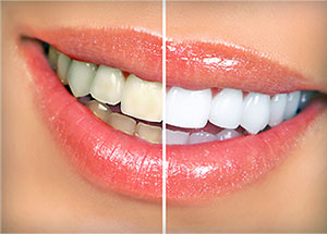 Whitening | Before and After | Asheboro, NC