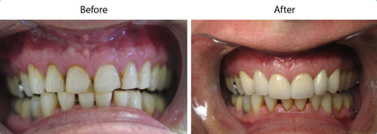 Crowns and Bridges | Before and After | W. Kelly Harris DDS | Asheboro, NC