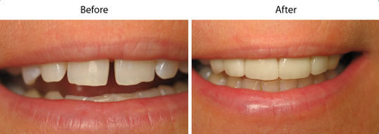 Before and After Cosmetic Treatment | W. Kelly Harris DDS | Asheboro