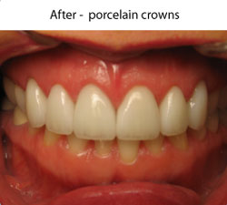Crowns and Bridges | After | W. Kelly Harris DDS | Asheboro, NC
