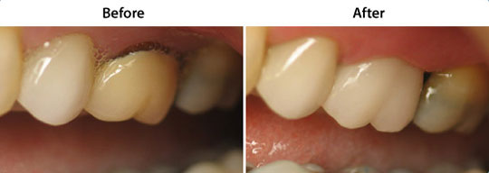 CEREC Same Day Restorations | W. Kelly Harris DDS | Asheboro, NC