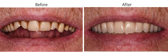 Dentures | Before and After | W. Kelly Harris DDS | Asheboro, NC