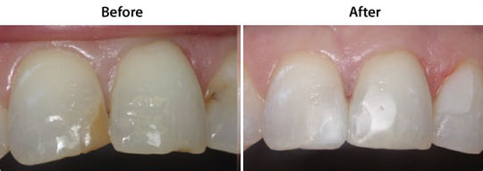 Tooth Colored Fillings | W. Kelly Harris DDS | Asheboro, NC