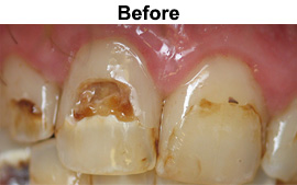 Tooth Colored Fillings | Asheboro Dentist