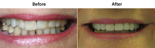 Veneers | W. Kelly Harris DDS | Asheboro, NC