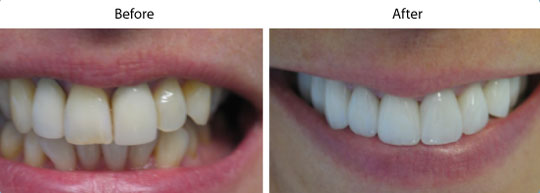 Veneers | Before and After | W. Kelly Harris DDS | Asheboro, NC